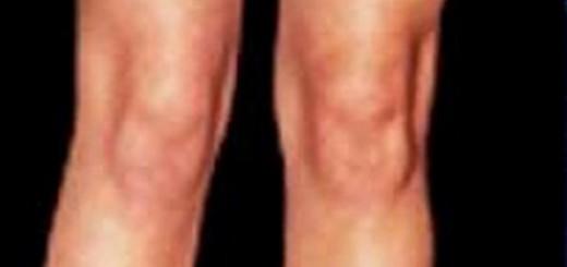 あれ?この膝、人面に見えるぞ!?膝が本当に膝小僧になっている瞬間まとめ