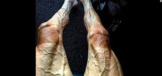 ツール・ド・フランス中のポリャンスキー選手が脚を自撮り!その過酷さが一発で分かる写真